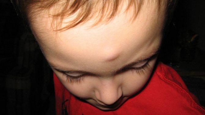 После ушиба появилась шишка и не проходит: что делать и как лечить