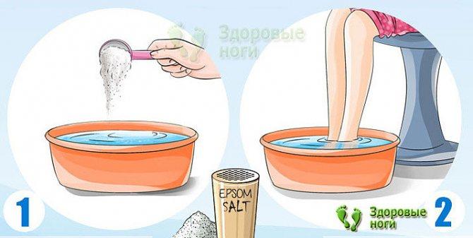При пяточной шпоре солевые ванночки оказывают обезбаливающий и противовоспалительный эффект