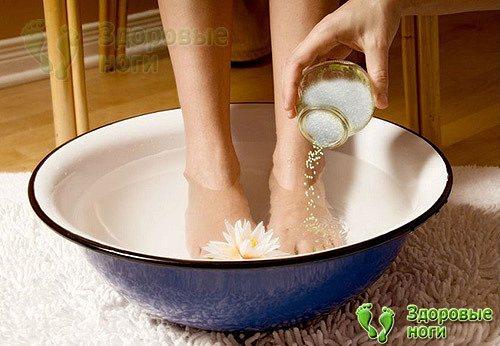 При пяточной шпоре ванночки для ног с солью помогут снять боль и снизить воспаление