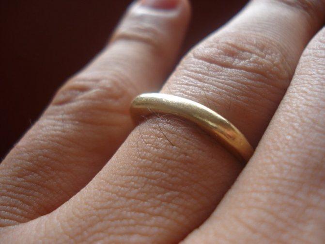 Причина потемнения кожи от золота