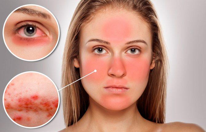 Причины почему горит лицо и краснеет, но температуры нет — печет и щиплет