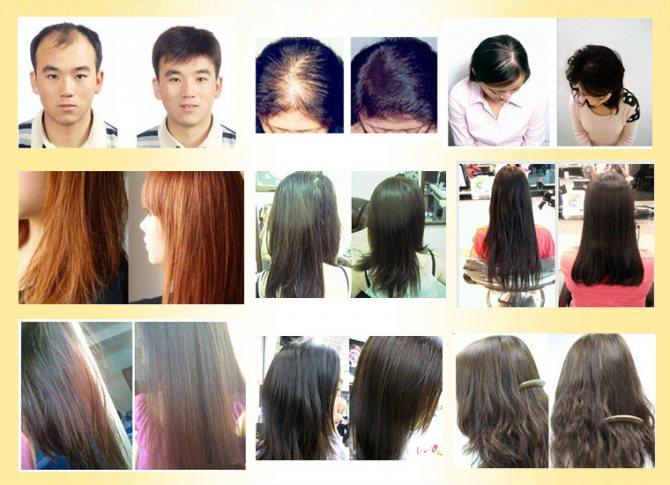 Применение Andrea для роста волос