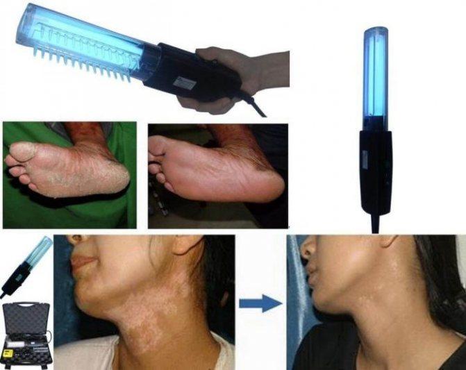 применение метода ПУВА-терапии