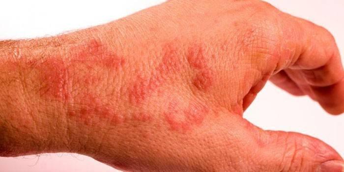 Проявления сыпи на коже рук