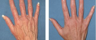 Расширенные вены на руках (до и после склерозирования)
