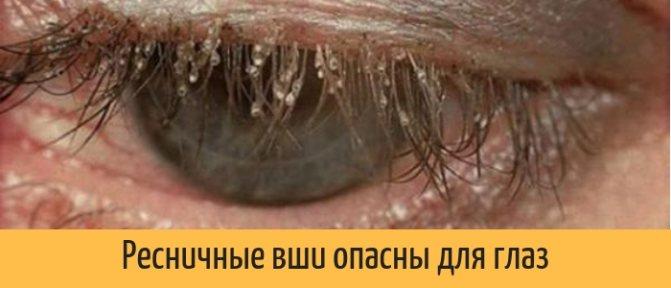 Ресничные вши опасны для глаз