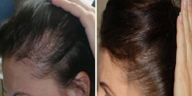 Результаты и отзывы после использования Дарсонваля для роста волос