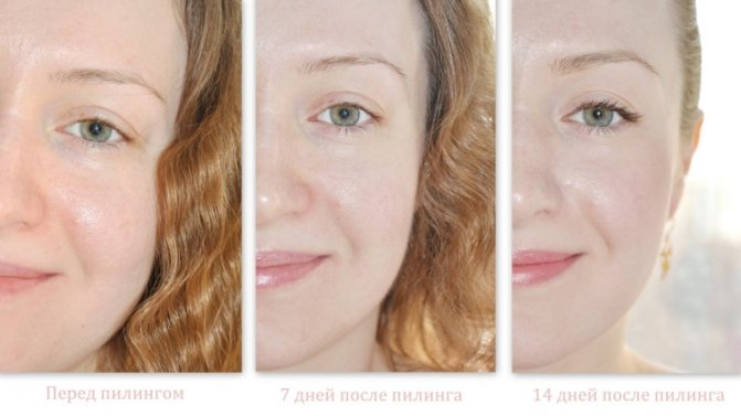 Результаты ретиноевого пилинга лица через 1 и 2 недели