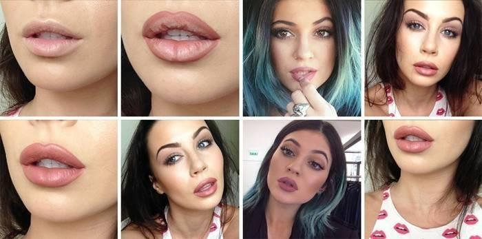 Результаты увеличения губ