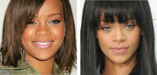 Рианна до и после пластики носа