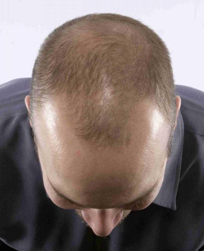 рост волос на голове у мужчин