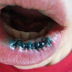 Рваная рана губы: швы