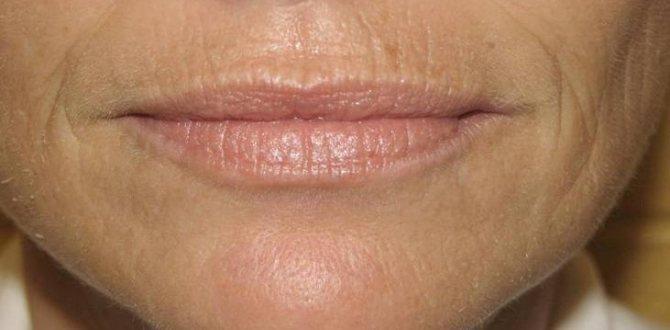 С возрастом губы становятся тоньше и покрываются морщинами
