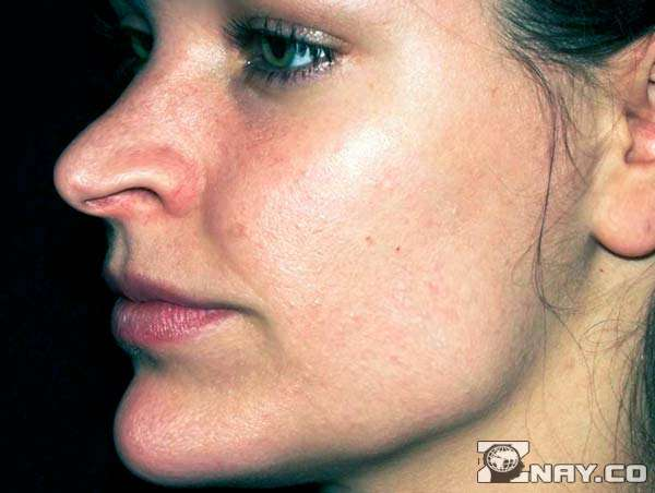 Сальная кожа девушки с угрями