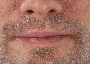 Себорейный дерматит на лице взрослого человека