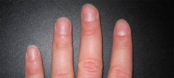 Шелушение около ногтей