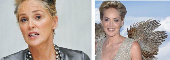 Шэрон Стоун до и после уколов красоты?