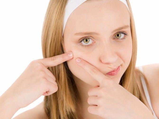 Сильные сальные выделения на лице провоцируют появление прыщей