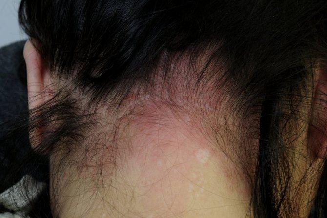Симптомы аллергии на шампунь