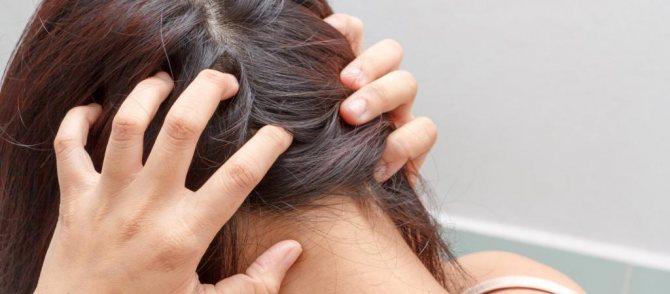 Симптомы болячек на голове