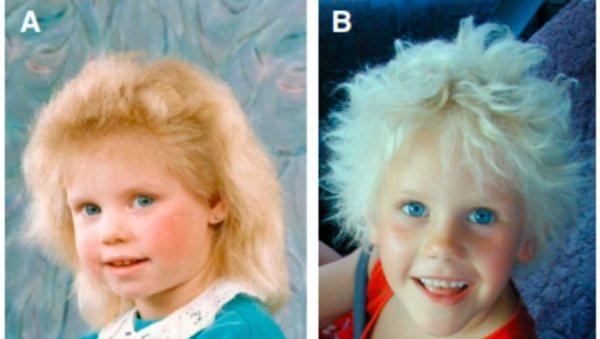 Синдром нерасчесанных волос. Что это такое, как уложить, стрижки и уход
