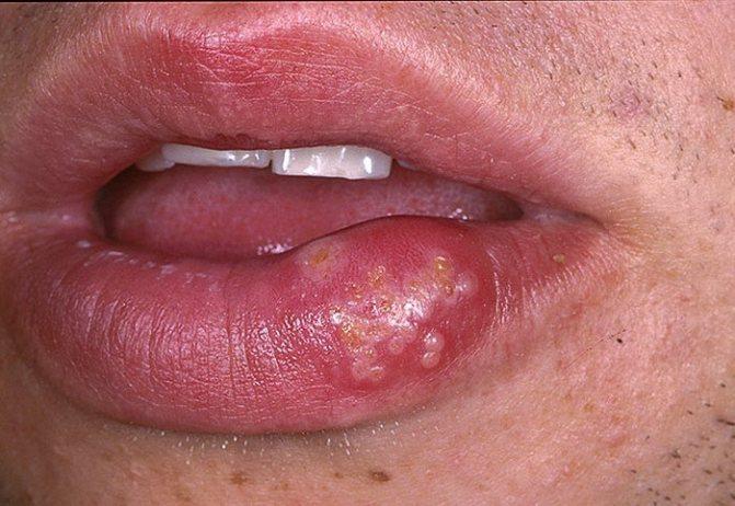 Сколько держится отек после увеличения губ, зависит от присоединения вторичной инфекции, в том числе герпеса
