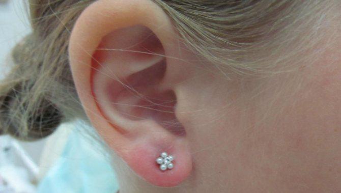 Сколько заживают проколотые уши, и как ухаживать за проколами у детей