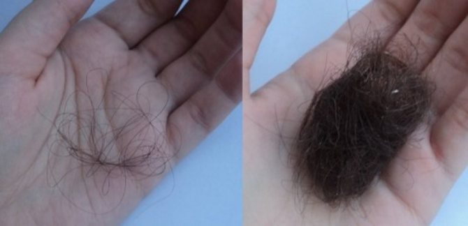 Следить за количеством выпадающих волос следует постоянно