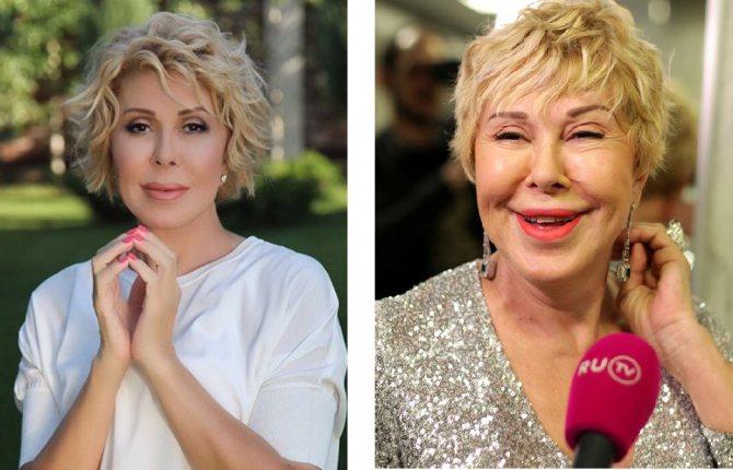 Слева: чудеса фотошопа; справа: неудачная контурная пластика губ Успенской