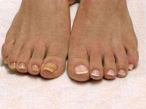 сохнут ногти на ногах