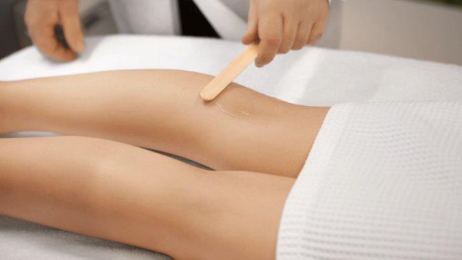 сосудистая сетка на ногах лечение