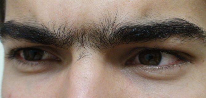 Сросшиеся брови у мужчин, как скорректировать