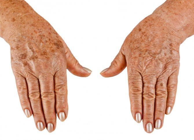 Темные пятна на коже и руках у человека: причины появления мелких черных точек и способы избавления