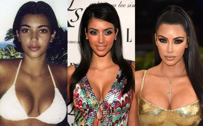Тогда и сейчас: как менялись сёстры Дженнер-Кардашьян - фото - Ким Кардашьян