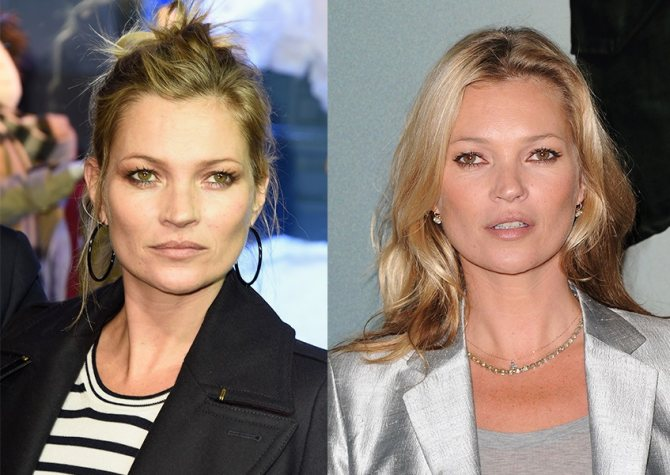 Тонкие губы не помешали Кейт Мосс стать одной из самых востребованных моделей