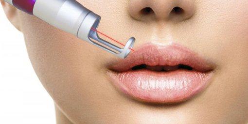 удаление татуажа губ