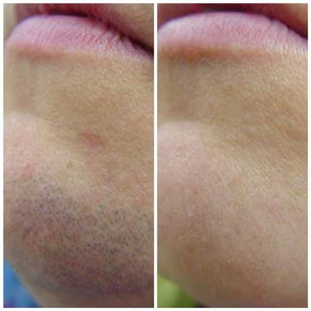 Уход за кожей лица до и после процедуры эпиляции