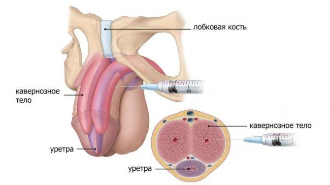 Увеличение толщины члена с помощью уколов