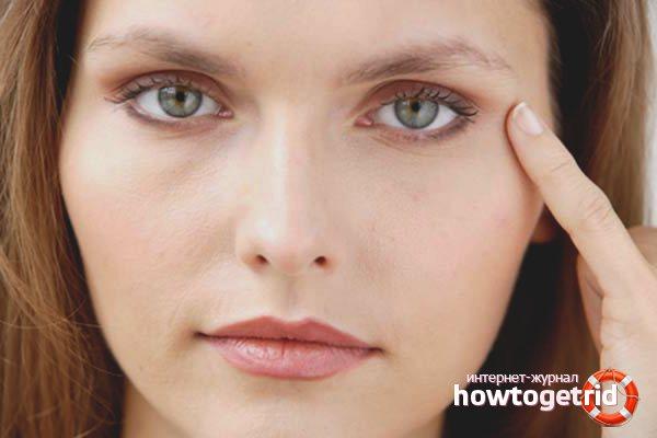 Варикоз глаз: если появились вены под глазами