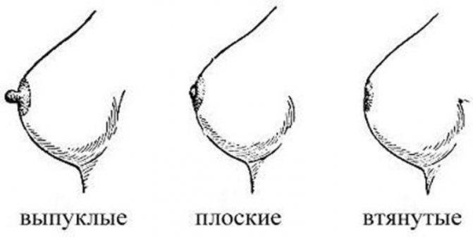 Виды сосков на схеме