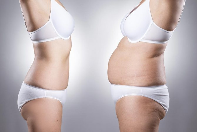 Влияние гормонов на ожирение