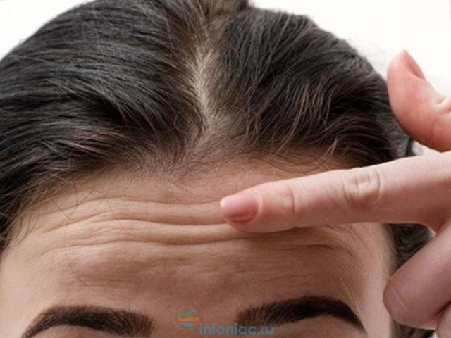 Волосы на лбу: как сформировать линию роста