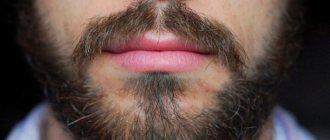 Волосы на лице мужчины