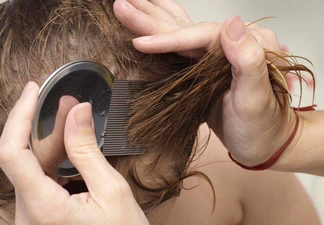 Вычесывание вшей и гнид после обработки керосином