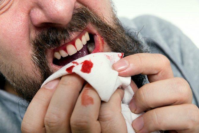 Выпал зуб с кровью