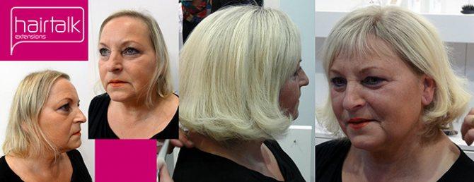 Замещение волос при начальной стадии облысения
