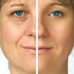 Женщина после 40, у которой одна часть лица природная, а на вторую нанесен омолаживающий макияж