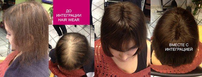 Женская интеграция Hair Wear до/после