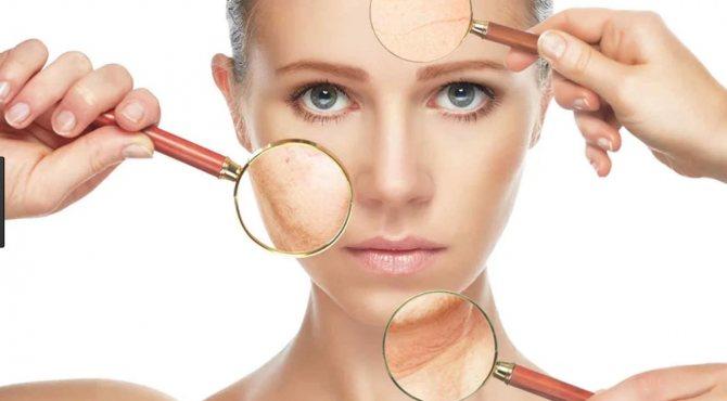 Жирная кожа лица: как справиться с проблемой и в чем ее причины?