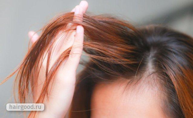 Жирные тонкие волосы